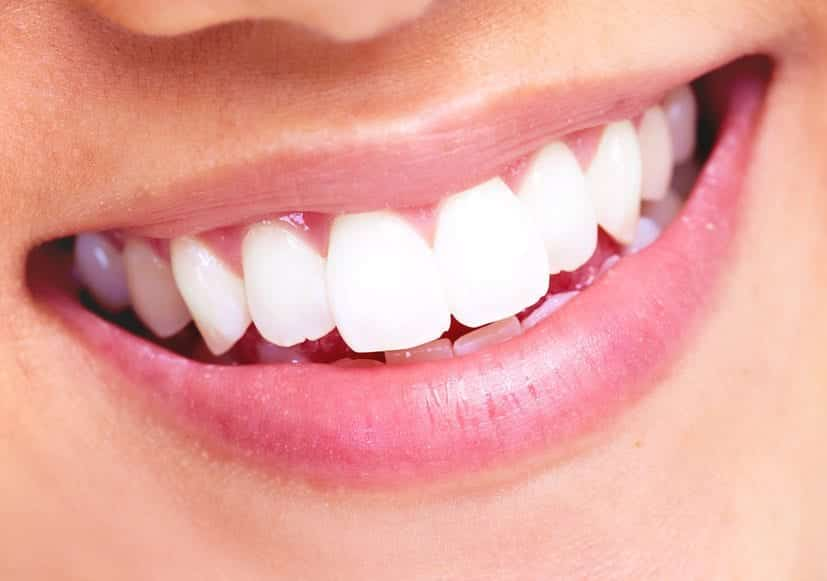 Considering Whitening Your Teeth? 3 Benefits And 3 Tips